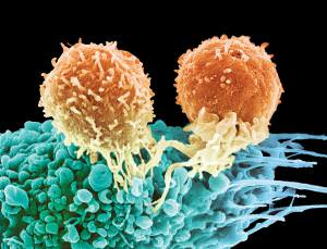 T-cell cancer treatment