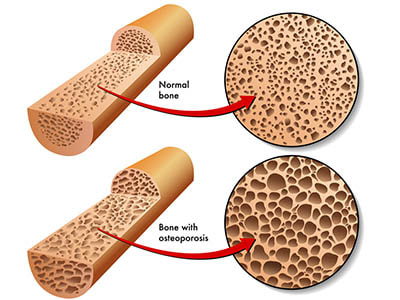 Osteoporosis: myths and facts